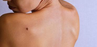 Nishanet në Trup, çfarë paralajmërojnë për shëndetin